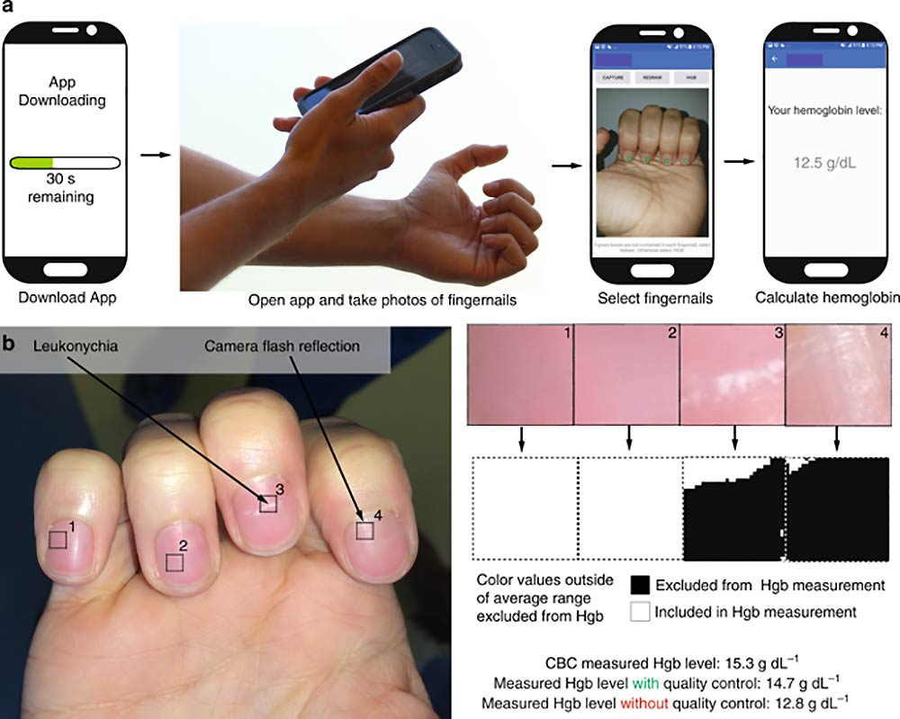 A mobile application detects anemia without a blood test
